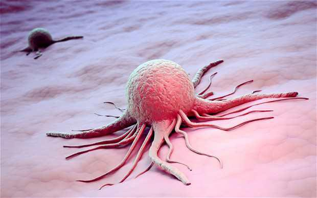 Representations of cancer cell
