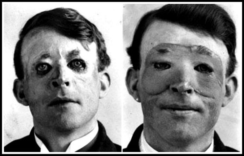 walter yeo, a world war i era plastic surgery patient