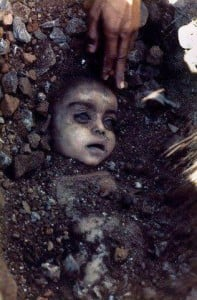 """This image is often circulated with the """"Miracle in Egypt"""" tale, but it actually shows a gas explosion victim from 1984."""